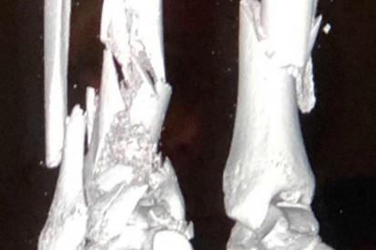 Juan Manuel Correa zeigt erstmals die Röntgenbilder seiner gebrochenen Beine