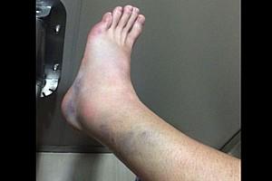 FIM Endurance Ultime notizie Ecco com'è ridotta la gamba di Casey Stoner