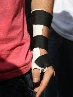 The splinted arm of Bruno Senna